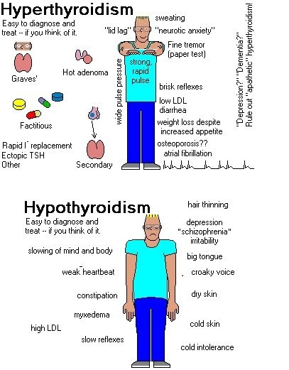 Hyperthyroidism is characterized by hypermetabolism and elevated serum