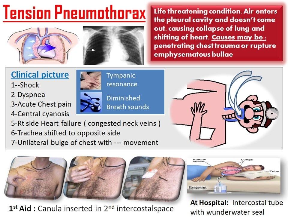 Tension Pneumothorax Tension Pneumothorax at a